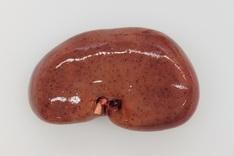 Einblutungen in der Niere sind Hinweise auf eine Infektion mit afrikanischer Schweinepest